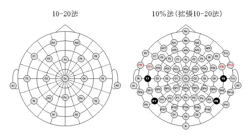 10-20system